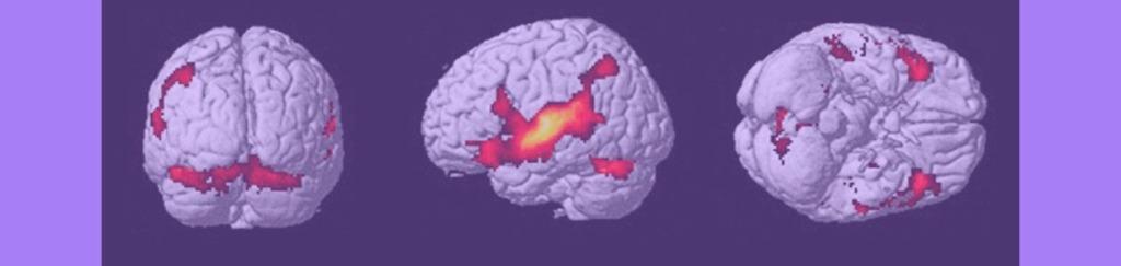 Ejemplo de Resonancia Magnética, con el cerebro en acción